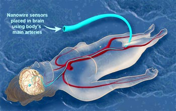 NSF - Wiring the Brain at the Nanoscale