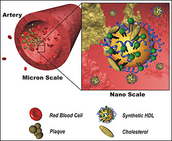 The synthetic HDL, based upon gold nanoparticle scaffolds, binds cholesterol and can potentially eat away at cholesterol-containing plaques. (Credit: Weston Daniel, David Giljohann and Michael Wiester, Mirkin Research Group)