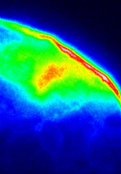 "In this image, a tiny portion of a scale from a ""photonic beetle"" is viewed using a conventional fluorescence microscope. When blue or ultraviolet laser light is aimed at the scale, most of the light is absorbed, but some is re-emitted as fluorescence. Thus, the microscope sees only the surface contour of the scale. The brightest area in the upper right is the thickest part of the shell and emits the most light.