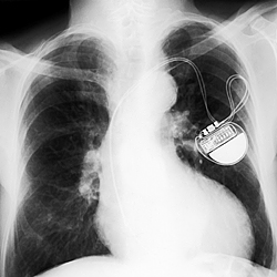 Pacemakers, like the implanted one shown in this image, are among the low-power devices that could be affected by new NIST findings about transistor noise. The findings indicate unforeseen problems could crop up as transistors grow smaller and run on less power, potentially impacting cell phones and laptops as well.