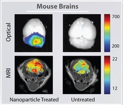 A mouse brain tumor imaged using nanoparticles (left column) or conventional techniques (right column) combined with optical imaging and MRI. The nanoparticles give a clearer picture of the tumor, which is located at the back of the brian in the cerebellum.  Image courtesy University of Washington.