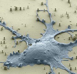 Scanning electron microscope image (false color) of a rat hippocampal neuron on a bed of vertical silicon nanowires. Nanowires penetrate the cell membrane without affecting cell viability, and can be used to efficiently deliver a wide variety of molecules into the cell's cytoplasm.Scanning electron microscope image (false color) of a rat hippocampal neuron on a bed of vertical silicon nanowires. Nanowires penetrate the cell membrane without affecting cell viability, and can be used to efficiently deliver a wide variety of molecules into the cell's cytoplasm. Courtesy: H. Park