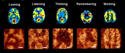 Magnetic resonance images of human brain during different functions appear on top. Similar evolving patterns have been generated on the molecular monolayer one after another (bottom). A snapshot of the evolving pattern for a particular brain function is captured using Scanning Tunneling Microscope at 0.68 V tip bias (scale bar is 6 nm). The input pattern to mimic particular brain function is distinct, and the dynamics of pattern evolution is also typical for a particular brain operation. Credit: Anirban Bandyopadhyay