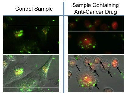 Images of nanoparticles (green) taken up by breast cancer cells. In the control sample (left), the magnetic field is not turned on. For the sample exposed to the magnetic field (right), an anticancer drug doxorubicin (red) is released into the cells, and the cells are killed.