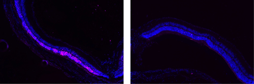 Image on left shows damage (pink) to the retina. Image on right show that POD GDNF nanoparticles protected the retina from damage. (Image courtesy of Rajendra Kumar-Singh, Tufts University School of Medicine)