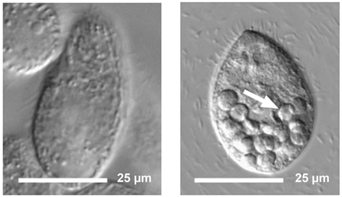 The quantum dot-tainted bacteria stop digestion in the protozoan, and food vacuoles with undigested material accumulate, seen in the right image. This is in contrast to the normal condition of protozoa eating untreated bacteria, seen in the left image.