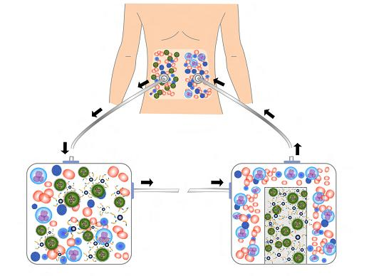 Schematic of magnetic nanoparticle treatment. Schematic shows how fluids containing ovarian cancer cells could be removed from the body, treated with magnetic nanoparticles to remove the cells, then returned to the body. (Courtesy of Ken Scarberry)