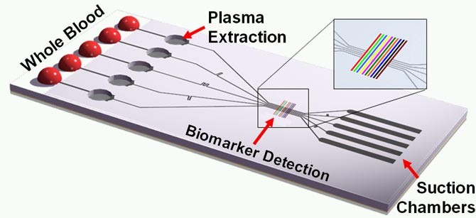Schematic of the tether-free SIMBAS chip that shows some of the functional elements, such as the blood loading area, the plasma separation microtrenches, detection sites and the suction flow structures.  (Ivan Dimov image)