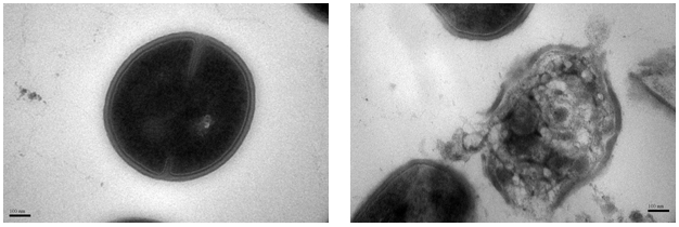 Figure 1: Transmission Electron Microscope (TEM) image of the MRSA cell before treatment.