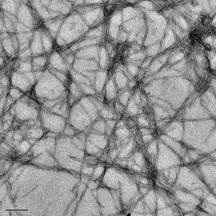 Amyloid fibrils like those magnified here 12,000 times are thought to be the cause of plaques in the brains of Alzheimer's disease patients. Rice University researchers have created a metallic molecule that becomes strongly photoluminescent when it attaches to fibrils.