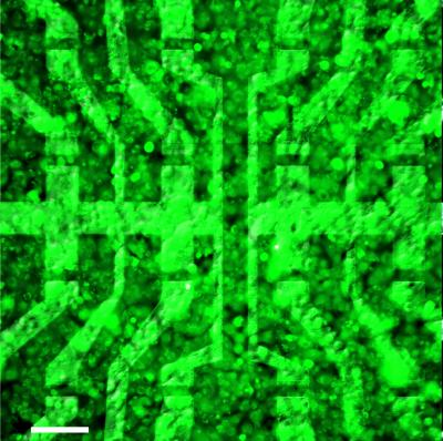This combination of optical microscopy and fluorescence imaging shows a layer of biological cells covering a graphene-based transistor array. The experimental device, created by scientists from the Technische Universitaet Muenchen and the Juelich Research Center, is the first of its kind to prove capable of recording signals generated by living cells, with good spatial and temporal resolution. With this demonstration, the researchers have opened the way to further investigation of the feasibility of using graphene-based bioelectronics for potential future applications such as neuroprosthetic implants in the brain, the eye, or the ear.