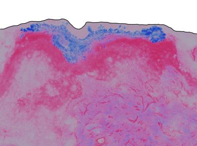 Zinc oxide (ZnO) nanoparticle distribution in excised human skin. The black line represents the surface of the skin (top), blue represents ZnO nanoparticle distribution in the skin (stratum corneum), and pink represents skin.