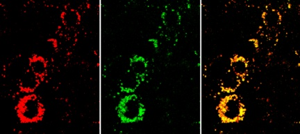The yellow nanosensor signal in the overlay image (right) shows that the cells are active. If they were unhealthy, they would appear much redder. Center: the indicator dye signal. Left: the reference dye signal. � Fraunhofer EMFT