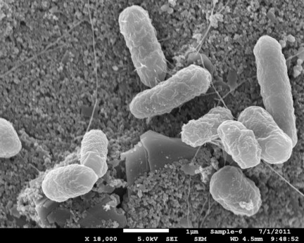 A scanning electron  microscope image of E. coli O157:H7 bacteria captured on the surface of a biosensor chip. Photo courtesy of Evangelyn Alocilja laboratory