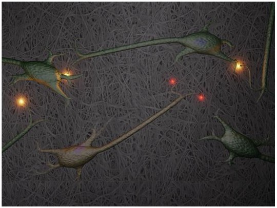 Nerve cells growing on a three-dimensional nanocellulose scaffold. One of the applications the research group would like to study is destruction of synapses between nerve cells, which is one of the earliest signs of Alzheimer�s disease. Synapses are the connections between nerve cells. In the image, the functioning synapses are yellow and the red spots show where synapses have been destroyed.