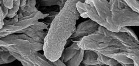 A dead E. coli bacterium collected in a filter after treatment with the Stanford nanoscavenger.Image: Mingliang Zhang, Stanford School of Engineering.