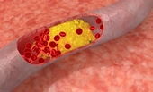 "Artery-clogging ""bad cholesterol"" could one day be fought with a new type of ""good cholesterol"" made in the lab.