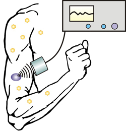 New technique allows diabetics to control insulin release with an injectable nano-network and portable ultrasound device.