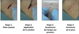"Phase 1 Skin injury, Phase 2 Application of the solution, Phase 3 Using pressure to hold the edges together, Phase 4 Skin closure. Illustration of the first experiment conducted by the researchers on rats: a deep wound is repaired by applying the aqueous nanoparticle solution. The wound closes in thirty seconds. � ""Mati�re Molle et Chimie"" Laboratory CNRS/ESPCI Paris Tech"