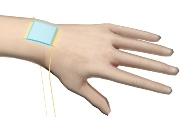 "A new kind of stretchy ""electronic skin"" (blue patch) is the first to be able to detect directional pressure.