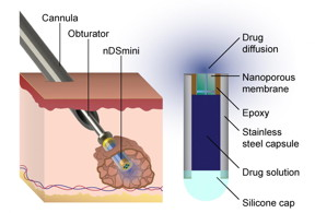 This diagram describes how the device Dr. Hood helped to develop is implanted into a cancerous tumor.