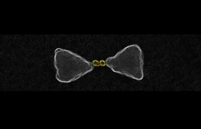 These are gold nanoparticles chemically guided inside the hot-spot of a larger gold bow-tie nanoantenna.