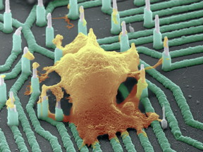 This is a colorized SEM image of a neuron (orange) interfaced with the nanowire array.